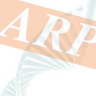 Synaptonemal Complex Protein 3 SYCP3 Human ELISA Kit