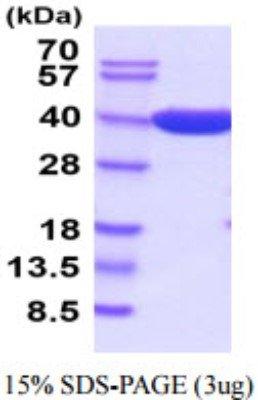 Recombinant E coli Beta Lactamase Protein 20 ug
