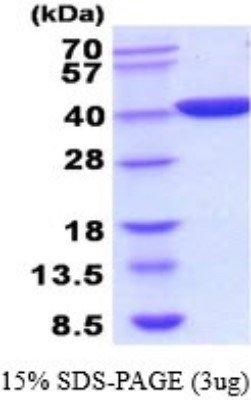 Recombinant E coli Lactate Dehydrogenase ALDHA Protein 01 mg